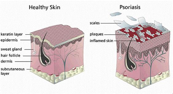Psoriasis Of TheScalp