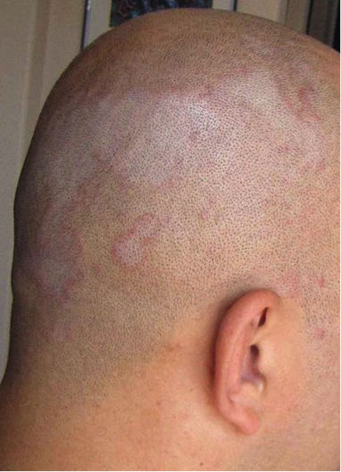 Scalp Conditions Triggered by Excess Heat From the Sun