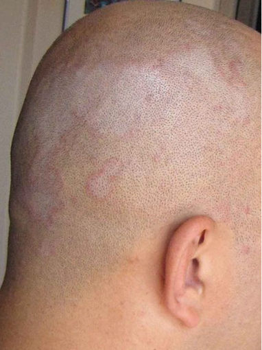Scalp Conditions Triggered by Excess Heat From theSun